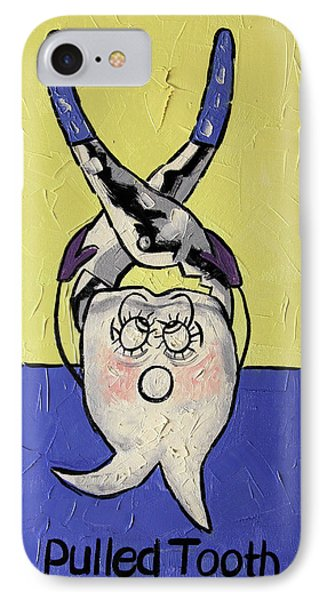 Pulled Tooth Dental Art By Anthony Falbo Phone Case by Anthony Falbo