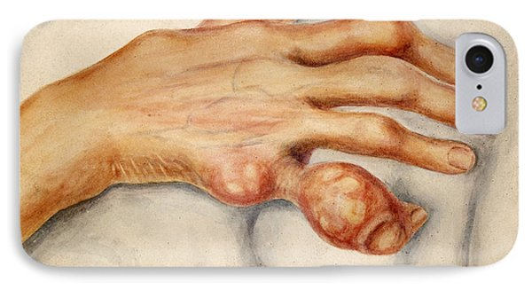 Right Hand With Tophus From Chronic Gout IPhone Case by Wellcome Images