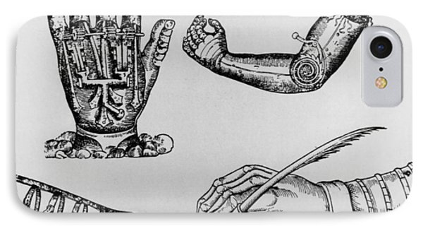 Selection Of 16th Century Artificial Arms & Hands. Phone Case by Dr Jeremy Burgess.