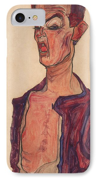 Self-portrait, Grimacing IPhone Case by Egon Schiele