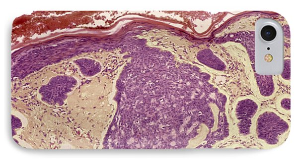 Skin Cancer, Light Micrograph Phone Case by Steve Gschmeissner