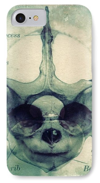 X Ray Terrestrial No. 13 Phone Case by Jane Linders