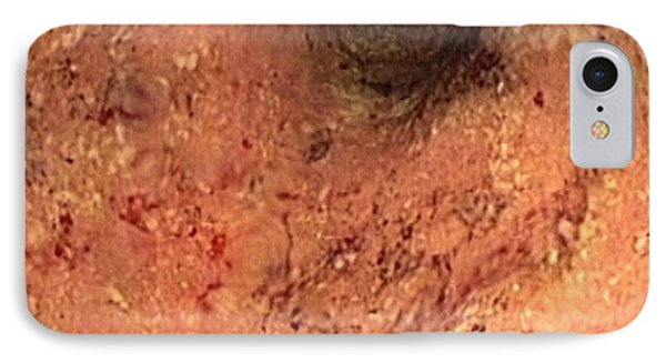 Ulcerative Colitis, Endoscopic View IPhone Case
