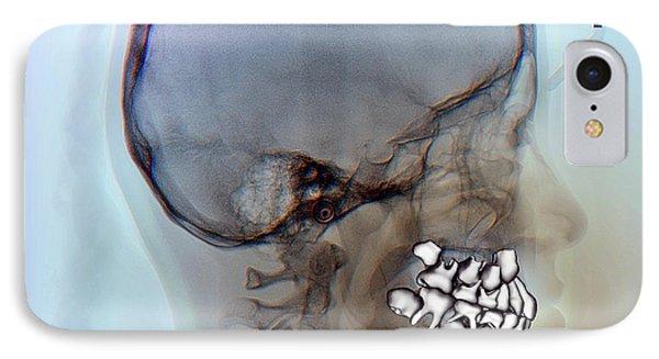 Normal Teeth IPhone Case