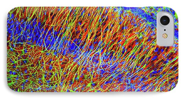 Fluorescence iPhone 8 Case - Brain Cells by Dr. Chris Henstridge