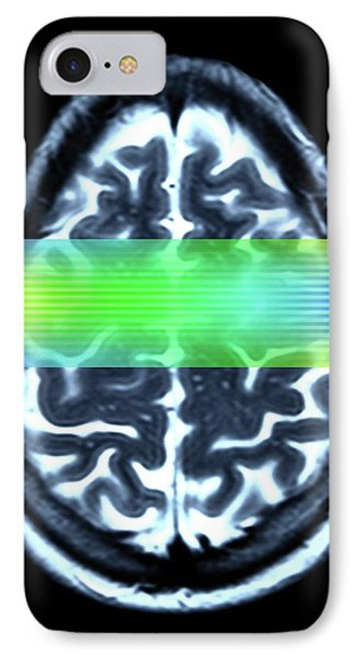 Brain Mri Scan IPhone Case
