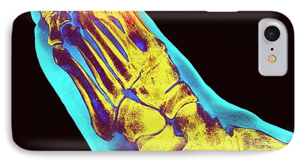 Degenerative Foot Deformation IPhone Case