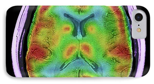Normal Brain Blood Flow IPhone Case
