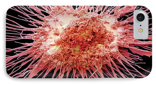 Dendritic Cell IPhone Case