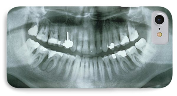 Dental X-ray Showing Fillings IPhone Case