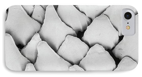 Dogfish Scales IPhone Case