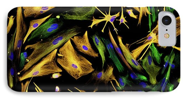 Fluorescence iPhone 8 Case - Neural Progenitor Cell Differentiation by Carol N. Ibe And Eugene O. Major/national Institutes Of Health