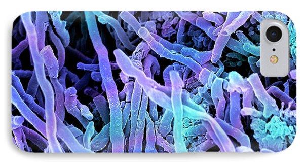 Streptomyces Coelicoflavus Bacteria IPhone Case