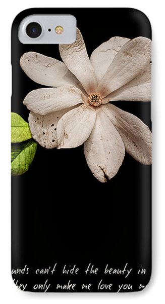 Wounds Cannot Hide The Beauty In You IPhone Case