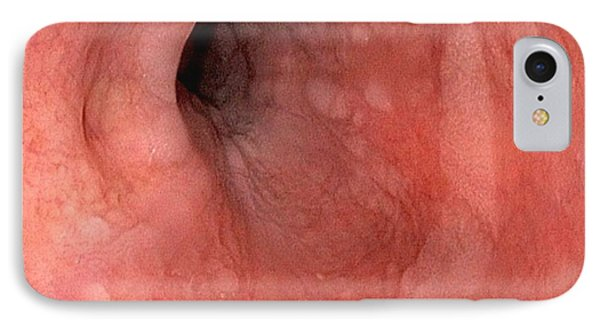 Glycogenic Acanthosis In Oesophagus IPhone Case