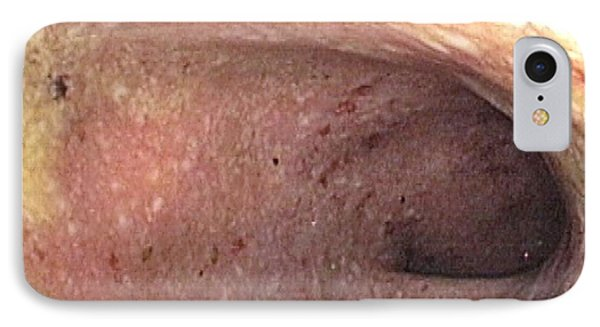 Ulcerative Colitis Of The Sigmoid Colon IPhone Case