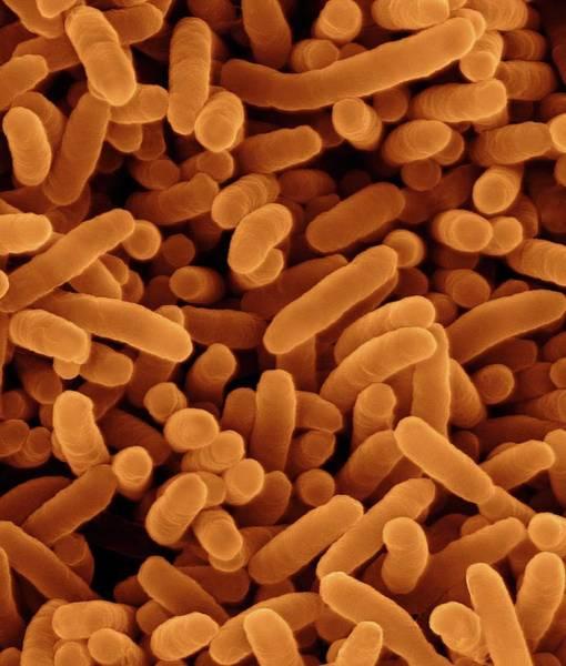 Fibrobacter Succinogenes Poster