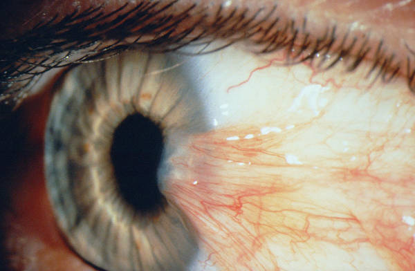 Pterygium Of The Eye Poster