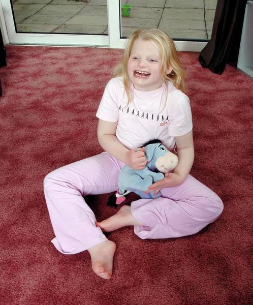 Angelman Syndrome Poster