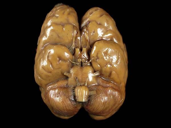 Brain Model Poster
