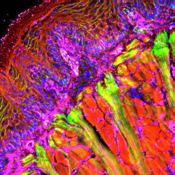 Tongue Tissue Poster