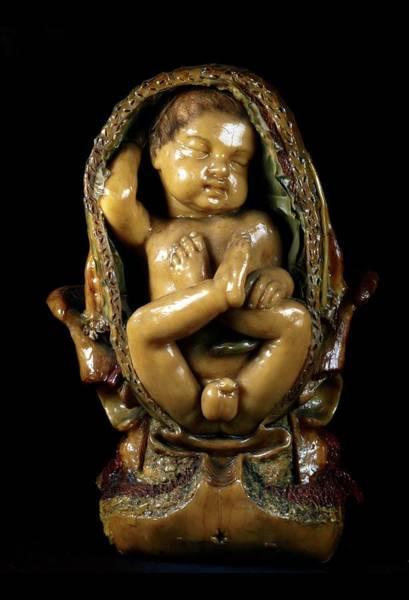 Breech Birth Model Poster