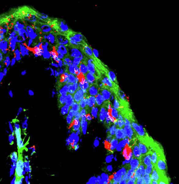 Dendritic Immune Cells Poster