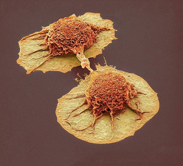 Dividing Lung Cancer Cells Poster