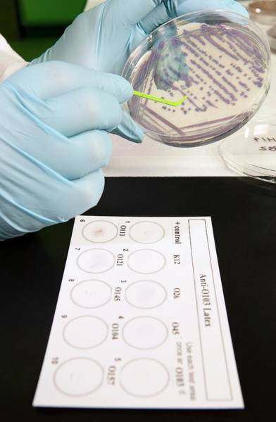 E. Coli Stec Bacterial Test Poster