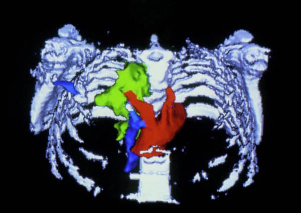 False-colour 3-d Ct Scan Of Pancreatic Cancer Poster