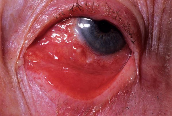 Inflamed Eye Poster
