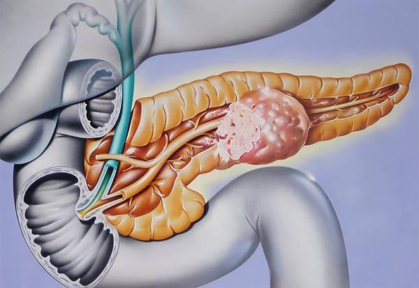 Pancreatic Cancer Poster