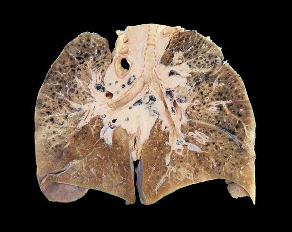 Primary Lung Cancer Poster