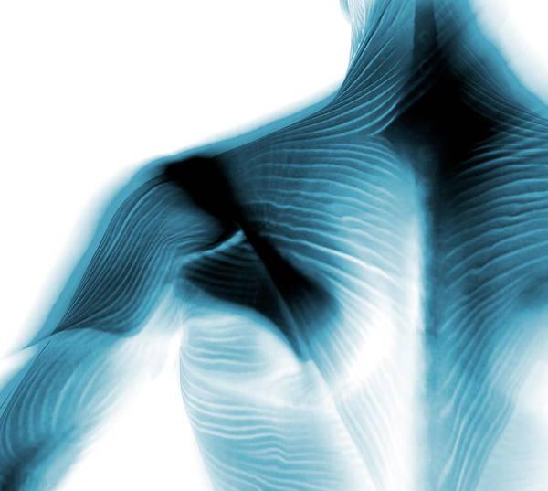 Shoulder Muscles Poster