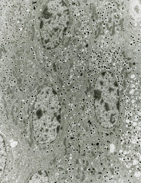 Tem Of A Section Of Islet Of Langerhans Cells Poster
