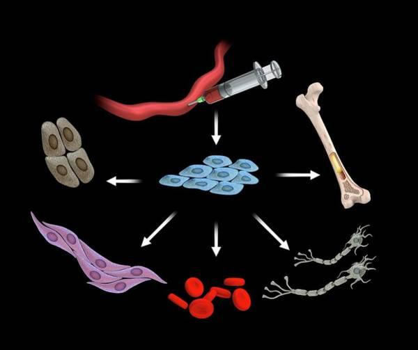 Umbilical Stem Cells Poster