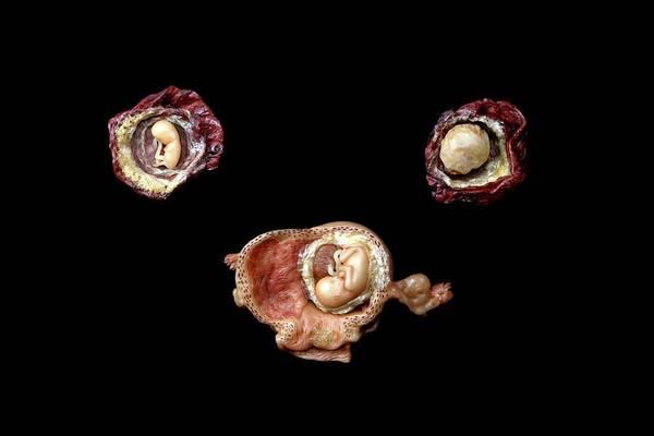 Wax Models Of Human Foetuses Poster