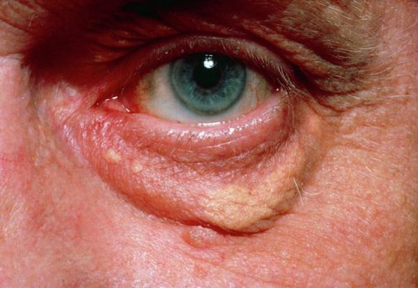 Yellowish Swelling Of Lower Eyelid Poster