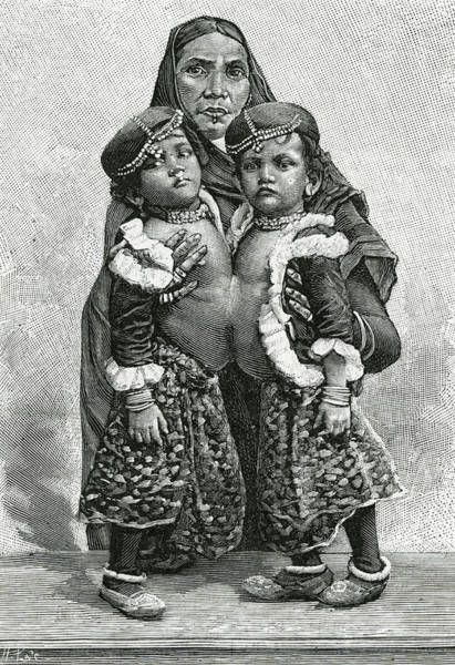Wall Art - Drawing -  Siamese Twins Radica And  Doodica by Mary Evans Picture Library