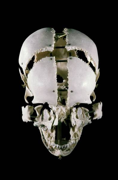 Anatomical Position Wall Art - Photograph - 19th Century Beauchene 'exploded' Skull by Patrick Landmann/science Photo Library