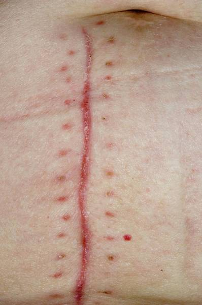 Staples Photograph - Abdominal Scar For Appendectomy by Dr P. Marazzi/science Photo Library