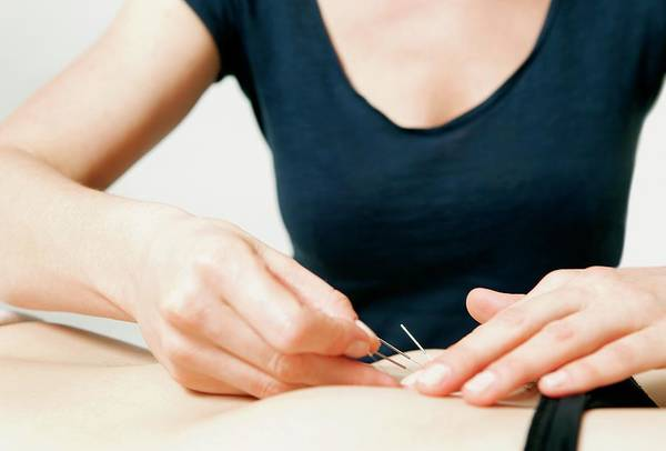Therapy Photograph - Acupuncture Fertility Treatment by Thomas Fredberg