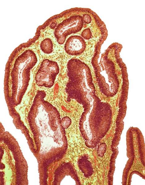 Digestive Systems Photograph - Adenoma Of Colon by Steve Gschmeissner/science Photo Library