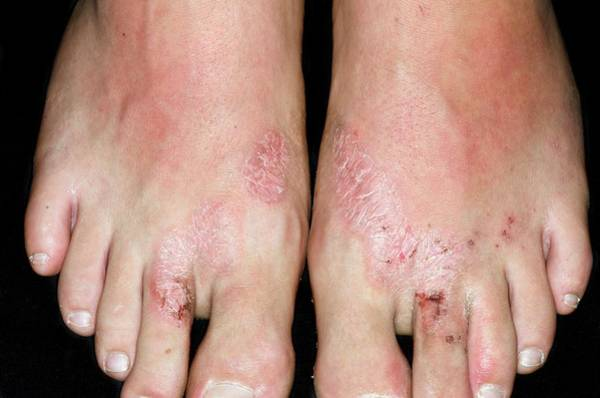 Flip Flops Photograph - Allergic Dermatitis From Flip-flops by Dr P. Marazzi/science Photo Library