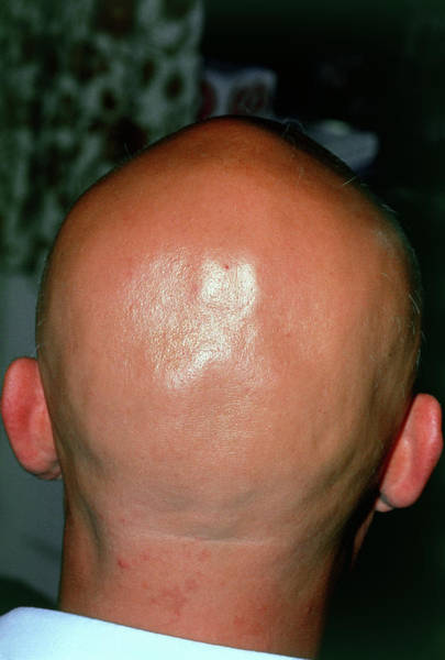 Alopecia Areata (hair Loss) Over The Scalp Of Man Art Print by Dr P. Marazzi/science Photo Library