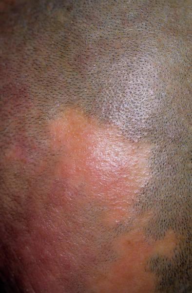 Alopecia Art Print by Dr P. Marazzi/science Photo Library