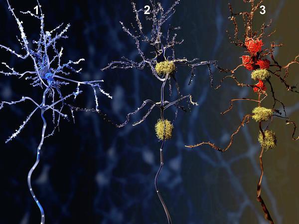 Wall Art - Photograph - Alzheimers Disease, Illustration by Juan Gaertner