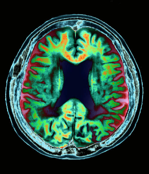Medical Imaging Photograph - Alzheimer's Disease by Zephyr/science Photo Library
