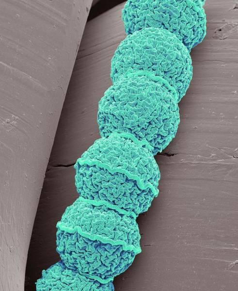 Filamentous Algae Photograph - Anabaena Algae by Steve Gschmeissner