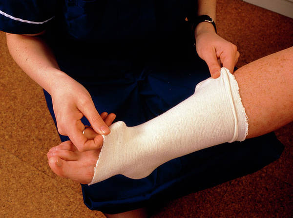 Bandage Photograph - Applying Bandage To Sprained Ankle by Hattie Young/science Photo Library